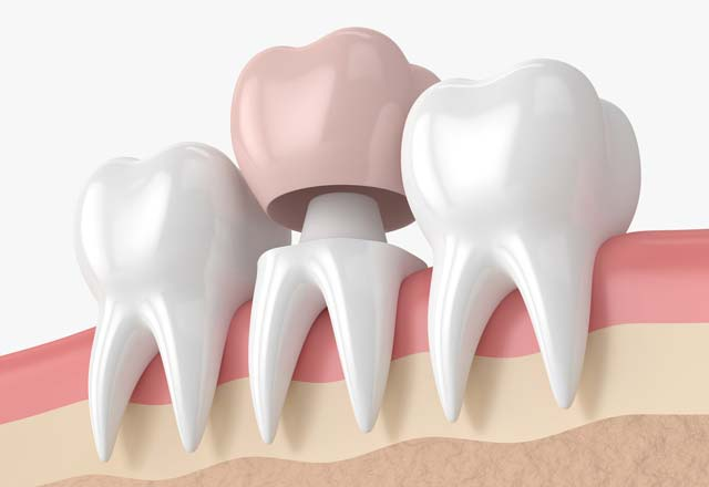 Dental Crowns Treatment in Dubai