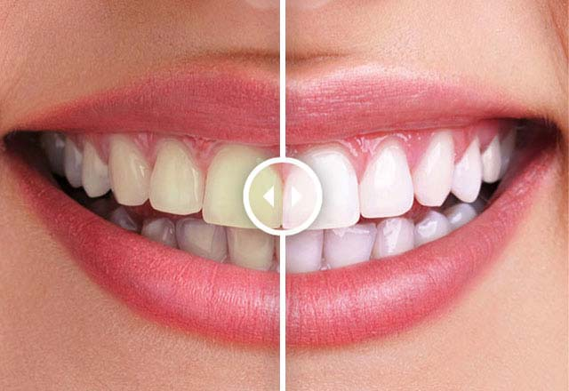 Tooth Whitening in Dubai