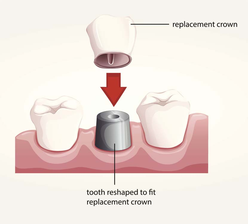 Dental Crowns Dubai UAE