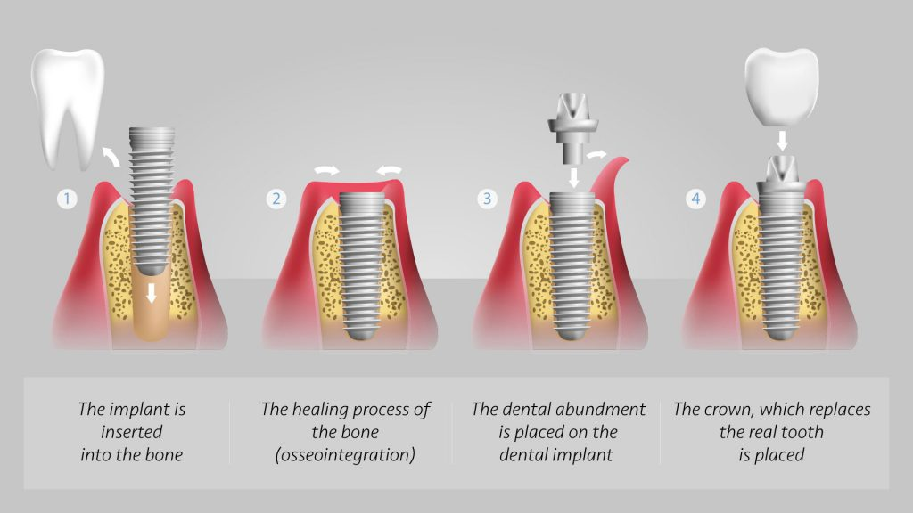 Dental implants procedure in Dubai