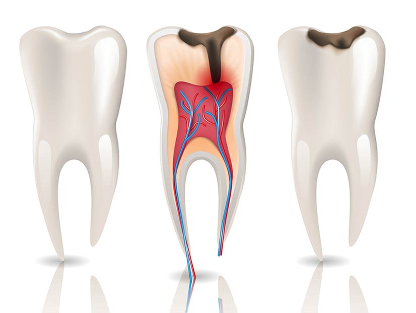 Root Canal Therapy Dubai UAE