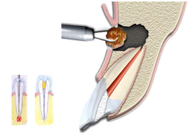 Root Tip Amputation Dubai - Surgical Treatments